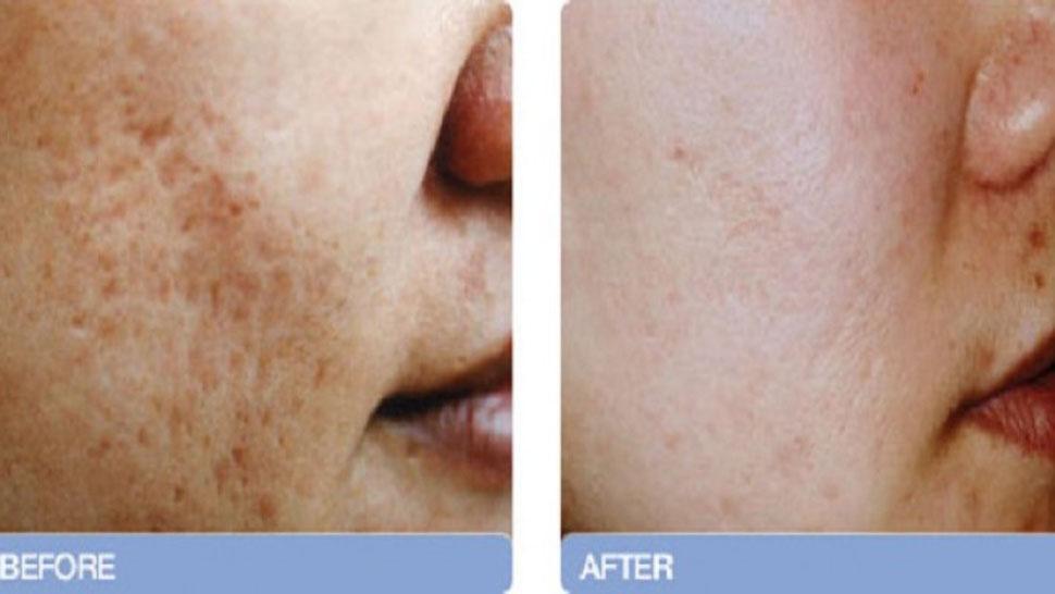 Como hacer la piel pura sobre la persona sin granos