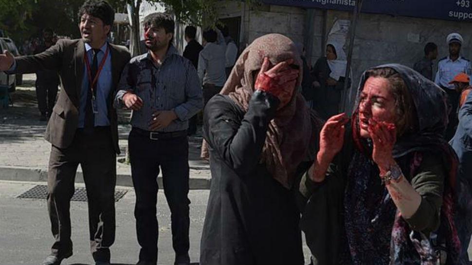 Atentado en Kabul deja 80 muertos y más de 300 heridos