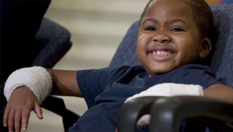 Logran primer trasplante de manos a niño sin parentesco con donante