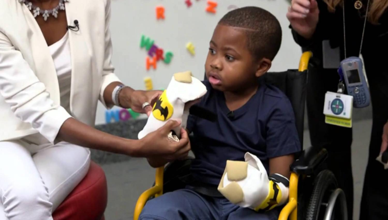 Niño que recibió el primer trasplante de manos muestra una asombrosa recuperación