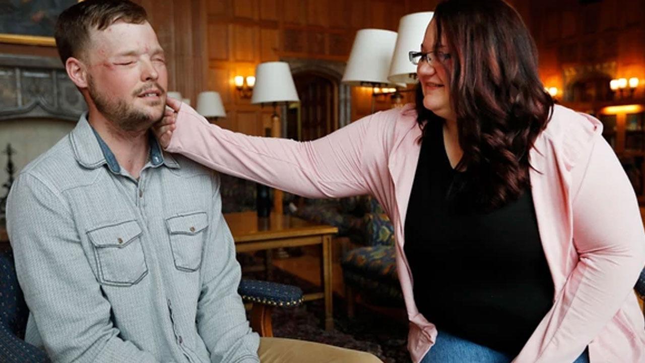 El emocionante encuentro entre hombre trasplantado de cara y la viuda del donante