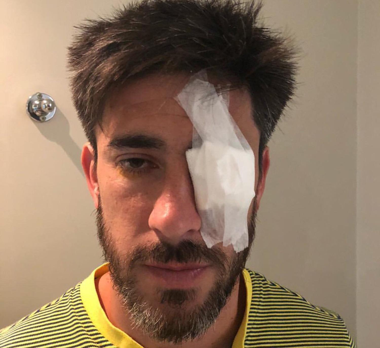 Imagen impresionable: así quedó la cara de Pablo Pérez tras ser agredido